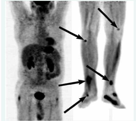 PET v době diagnózy (snímán se vzpažením horních končetin v rozsahu od báze lební níže)