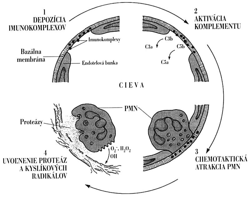 Lokálne imunopatologické pôsobenie imunokomplexov Imunokomplexy na pevne uchytia v bazálnej membráne ciev (1). Následne aktivujú komplementový systém, pričom vznikajú chemotaktické fragmenty, najmä C5a (2), ktoré do miesta uloženia imunokomplexov pritiahnu neutrofily (3). Tieto svojimi Fc-receptormi pre IgG sa snažia imunokomplexy pohltiť, čo sa im pre ich pevné ukotvenie nedarí. Aktivované neutrofily však uvoľňujú svoje cytotoxické látky, ktoré poškodia endotel (4) s následnou aktiváciou hemokoagulačného systému, tvorbou mikrotrombov a ischemickou nekrózou tkaniva. C3a, C3b, C5a, C5b – fragmenty komplementu vznikajúce pri jeho aktivácii; PMN – polymorfonukleárny leukocyt Fig. 7. Local immunopathological activity of immune complexes Immune complexes deposit in the vascular basal membrane (1). Subsequently, they activate the complement system, with the generation of chemotactic fragments, in particular C5a (2), that direct neutrophils towards the immune complexes (3). Neutrophils try to phagocytize the immune complexes via the IgG Fc-receptors but are not successful due to the firm adhesion of the immune complexes. Activated neutrophils release cytotoxic substances causing damage to the endothelium (4) with subsequent activation of the blood coagulation system, microthrombus formation and ischemic tissue necrosis. C3a, C3b, C5a, C5b – complement fragments generated during the complement activation; PMN – polymorphonuclear leukocyte