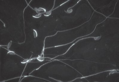Imunofluorescenční značení akrosomu myších spermií pomocí monoklonální protilátky (Hs-14) proti akrozomálním proteinům, kontrolní skupina a experimentální po ovlivnění bisfenolem A.