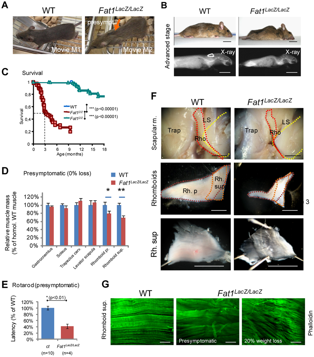 Presymptomatic adult <i>Fat1</i> mutant mice show selective defects in scapular muscles.