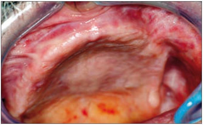 Bezzubý alveolární výběžek horní čelisti po extrakci všech zubů.