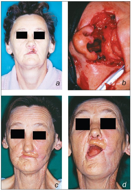 A 62 year-old lady presented with a T2N1M0 squamous cell carcinoma of the upper lip (a); the defect after tumour resection (b); functional result after upper lip reconstruction using folded radial forearm free flap (c, d)