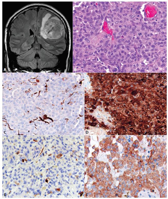 """Epitelioidný glioblastóm (eGBM). MRI tumoru pravej frontoparietálnej oblasti u 21 ročnej ženy <b>(A)</b>. Nádor bol tvorený monotónnou populáciou epiteloidných buniek s objemnou eozinofilnou cytoplazmou. Niektoré bunky mali rabdoidnú morfológiu, s excentricky uloženými jadrami a eozinofilnou cytoplazmatickou inklúziou (šípka, <b>B</b>). Expresia GFAP v eGBM je často limitovaná na malú časť buniek, alebo môže byť kompletne negatívna <b>(C</b>). Difúzna expresia S100 proteínu (alternatívny """"gliálny"""" marker). Ostatné melanoma-markery sú vždy negatívne <b>(D)</b>. Častá je fokálna expresia """"neuronálnych"""" markerov, napr. neurofilamet proteínu <b>(E)</b>. Difúzna expresia BRAF V600E mutovaného proteínu <b>(F)</b>. Obrázky láskavo poskytol Arie Perry, Department of Pathology, Division of Neuropathology, University of California, San Francisco, USA."""