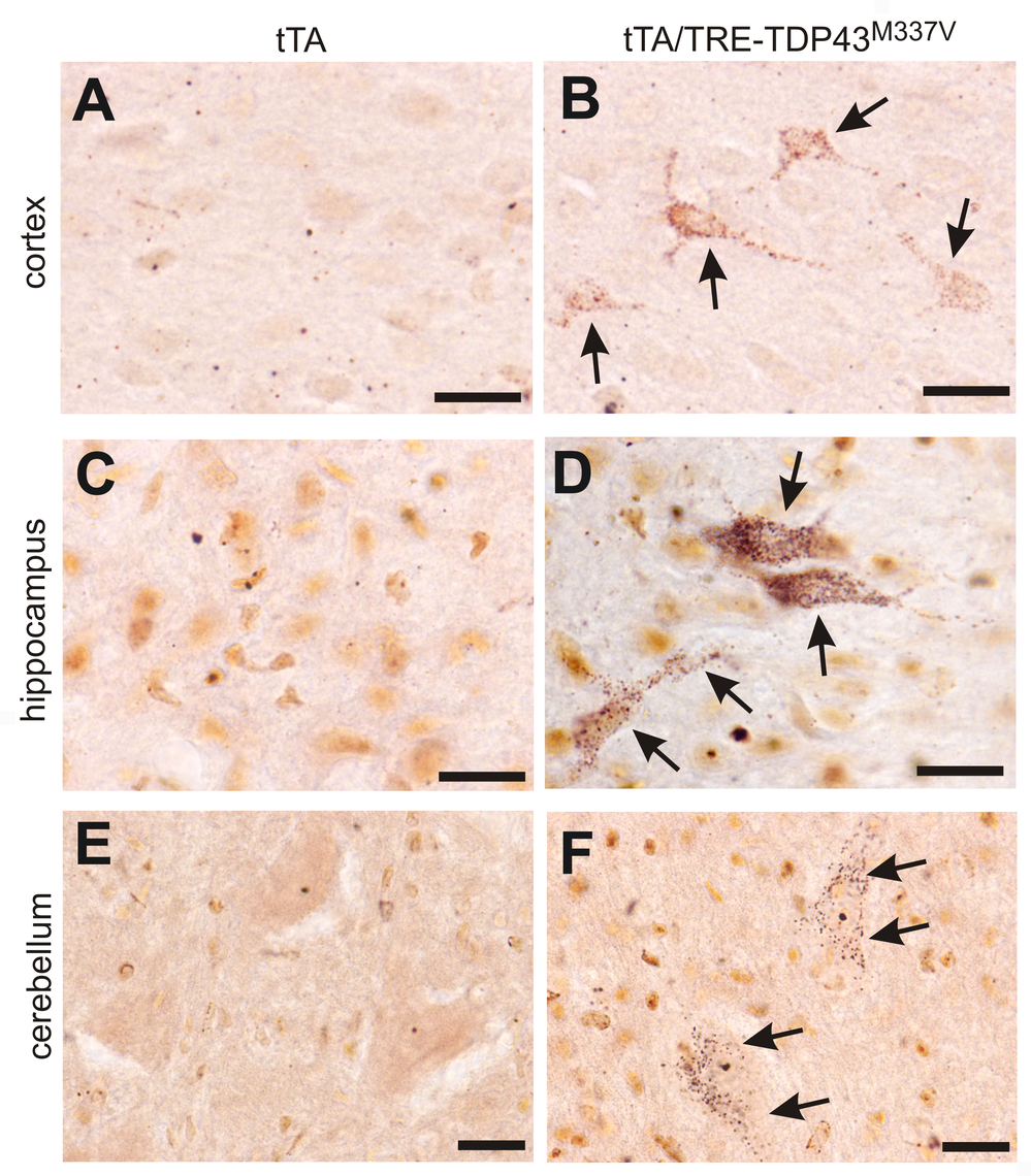 Degeneration of non-motor neurons in paralyzed mutant <i>TDP</i> transgenic rats.