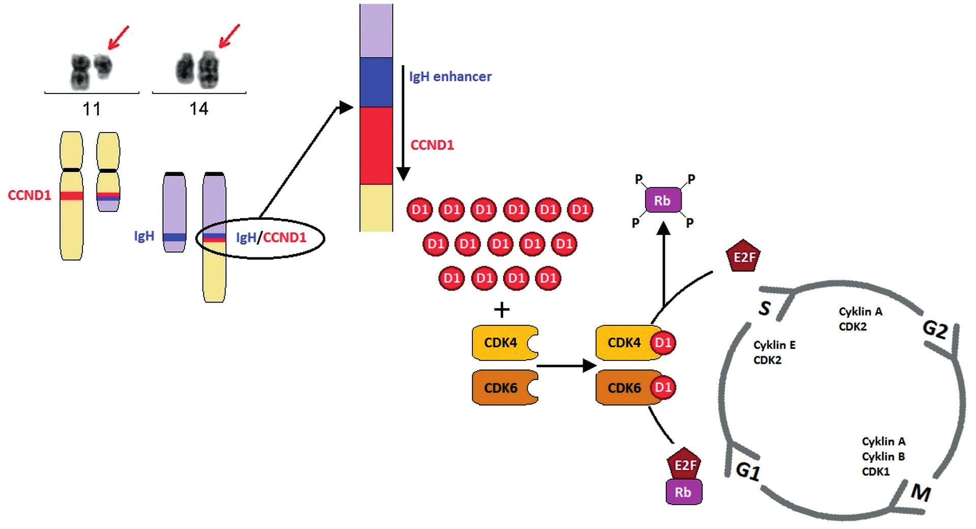Schéma t(11;14)(q13;q32) a její vliv na patogenezi MCL Translokace t(11;14)(q13;q32) vede k tvorbě derivovaného chromozomu 11, který je výrazně kratší než normální chromozom 11, a derivovaného chromozomu 14, který je naopak výrazně delší.  V důsledku translokace dochází k přemístění genu CCND1 na chromozomu 11 v pruhu q13 pod zesilovač transkripce těžkých řetězců imunoglobulinových genů (IgH) na chromozom 14 v pruhu q32. Na derivovaném chromozomu 14 vzniká fuzní gen IgH/CCND1. V normálních lymfocytech expresi cyklinu D1 detekovat nelze, ovšem následkem t(11;14), respektive t(2;11)/t(11;22) je gen CCND1 konstitutivně přepisován a jeho hladina zůstává v buňkách MCL vysoká. Cyklin D1 funguje jako spouštěč buněčného cyklu, vazbou s cyklin-   ependentní kinázou 4 a 6 (CDK4, CDK6) vytváří komplex, který fosforyluje Rb1 protein a dochází k aktivaci řady transkripčních faktorů, které umožní vstup do další fáze buněčného cyklu.