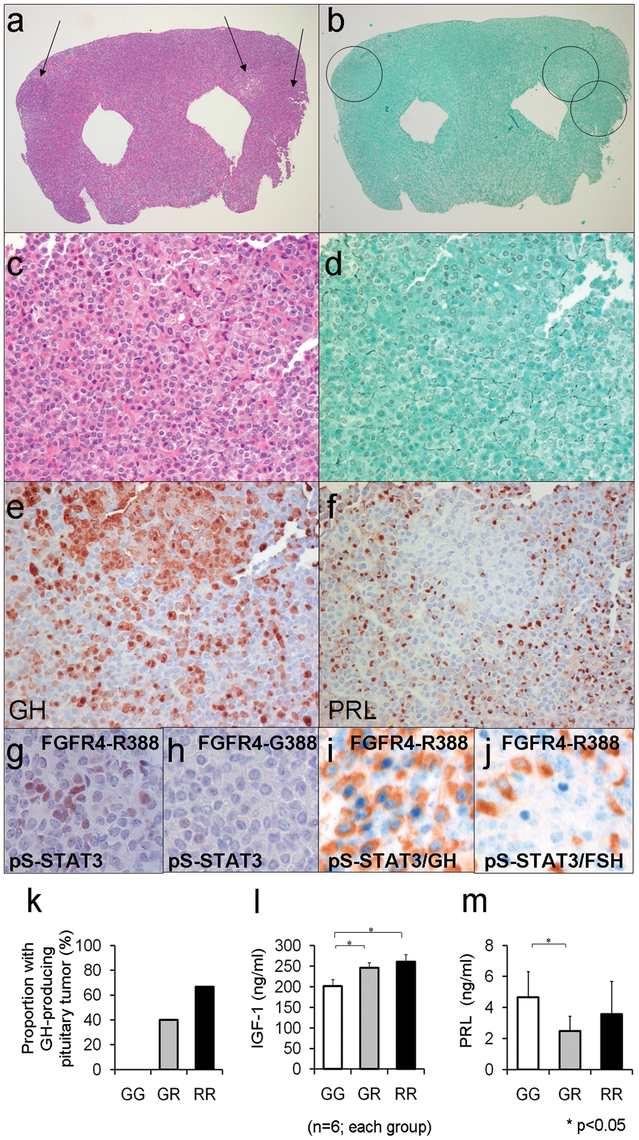 Mouse knock-in of the FGFR4 SNP facilitates pituitary GH cell tumorigenesis.