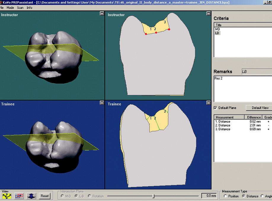 Hodnocení pomocí distance zvolených bodů (pro názornost zvýrazněny červeně) od okraje preparacek povrchu zubu. Rozdíl této vzdálenosti mezi vzorema posuzovaným zubem je vypsán vpravém dolním rohuokna.Ale pozor! Relevantní hodnota je pouze vzdálenostč. 2. Vzdálenosti 1 a 3 jsou měřeny k jinému bodu nežbyl původní záměr (rohy kavity). Software pravděpodobně vybral nejbližší bod, který se blíží prostorovému umístění bodu zvoleného.