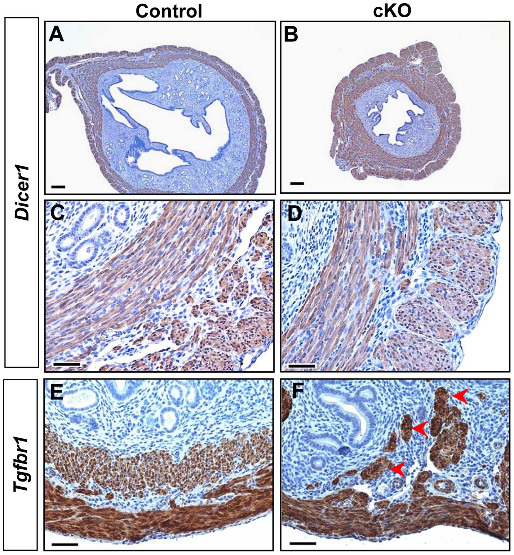 Distinct uterine phenotypes between <i>Dicer1</i> cKO and <i>Tgfbr1</i> cKO mice.