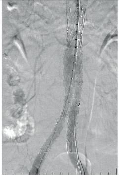 Aneuryzma břišní aorty vyztužené stentgraftem po úspěšné endovaskulární intervenci (EVAR)