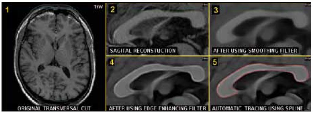 Plně automatické měření plochy corpus callosum na středovém řezu, sagitální rekonstrukce (T1W/3D). Výchozí transverzální řez (1), sagitální rekonstrukce (2), vyhlazení (3), zvýraznění okrajů corpus callosum (4), vlastní automatické obtažení (5).