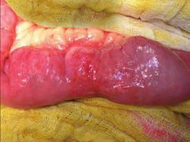 Peroperační fotografie – chronická stenóza tenké kličky indikovaná k strikturoplastice