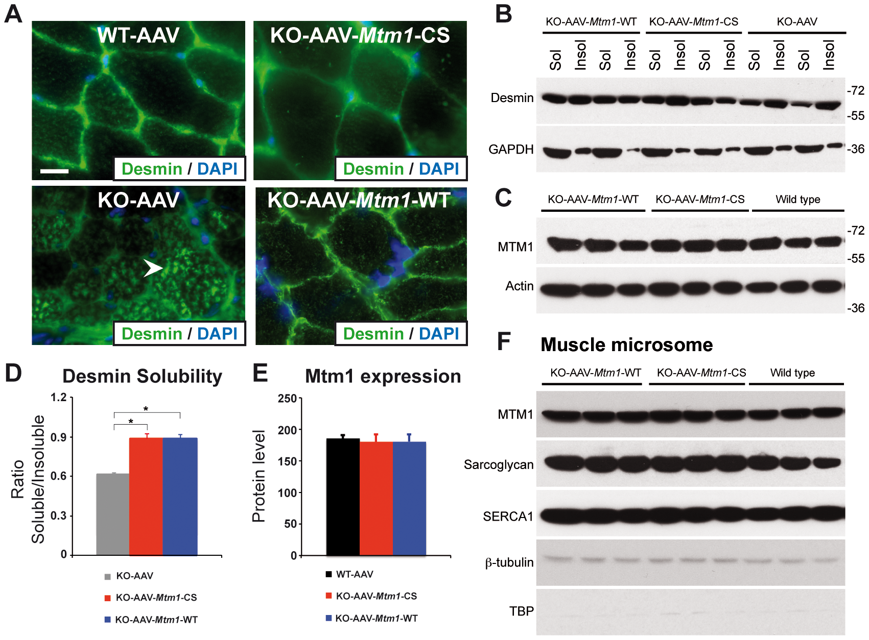 The phosphatase-dead C375S myotubularin mutant injection in <i>Mtm1</i>-KO muscle restores normal desmin expression and localization.