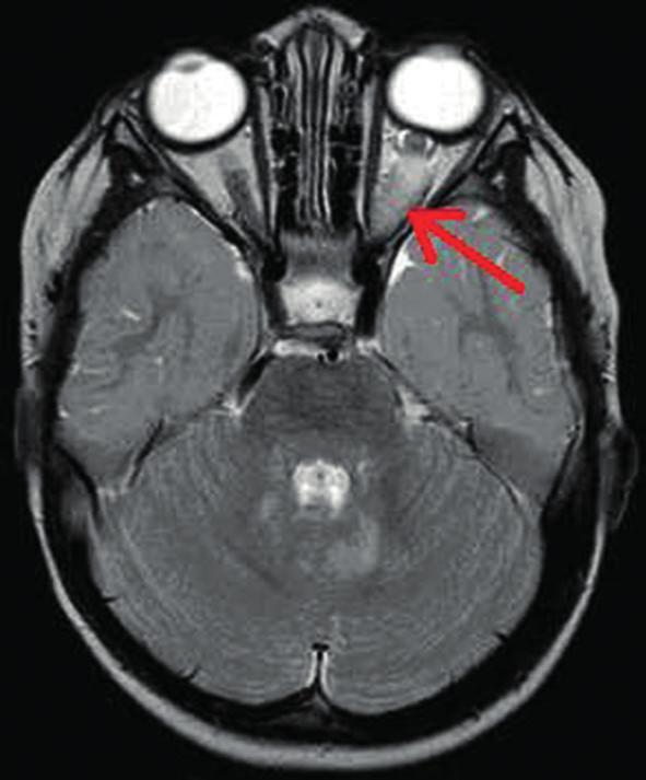 Gliom levého optiku intraorbitálně (šipka) na MR vyšetření mozku v T2 vážených obrazech u 2letého chlapce  Současně zjištěna hypersignální ložiska mozečku v okolí IV. komory.