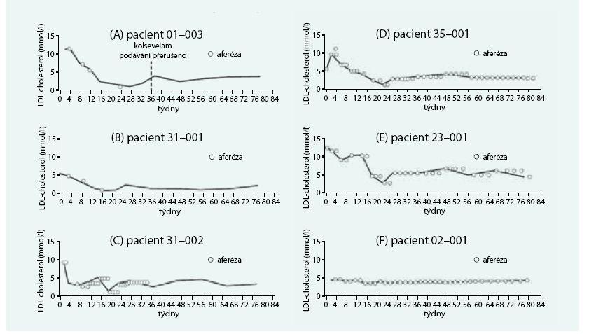 Vliv kombinované léčby LA alomitapidem na LDL-cholesterolemii u homozygotů FH.