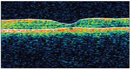 OCT snímek levého oka 10 měsíců od zahájení léčby