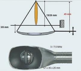 Schéma 3a. Modifikace ohniska: hloubka penetrace (19–26 mm).