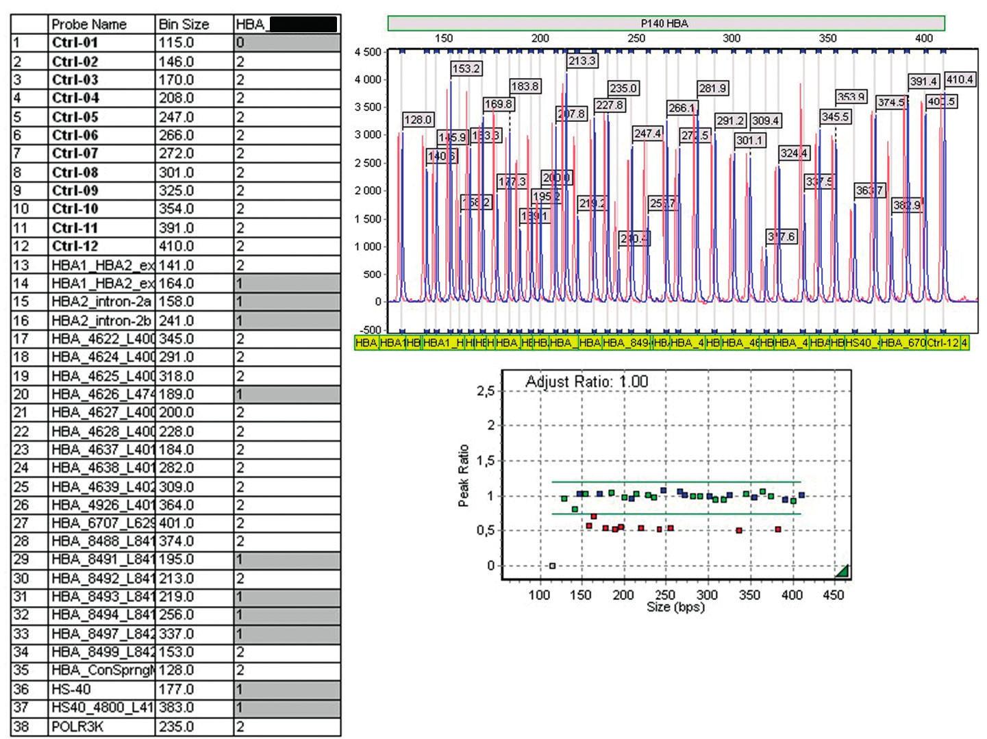Obr. 4D. Diagnostika α-talasemických delecí Výsledek MLPA prokazující deleci regulační oblasti HS-40 a α<sup>+</sup>-talasemickou deleci –α<sup>3.7</sup>, které u složeného heterozygota vedou k chorobě HbH. Další informace k dané technologii a způsobu analýzy výsledků jsou dostupné na www.mlpa.com, produkt SALSA MLPA P140 HBA probemix. V případě podezření na bodovou mutaci (nedeleční mutaci) se rutinně používá sekvenování <i>HBA1</i> a <i>HBA2</i> genů.