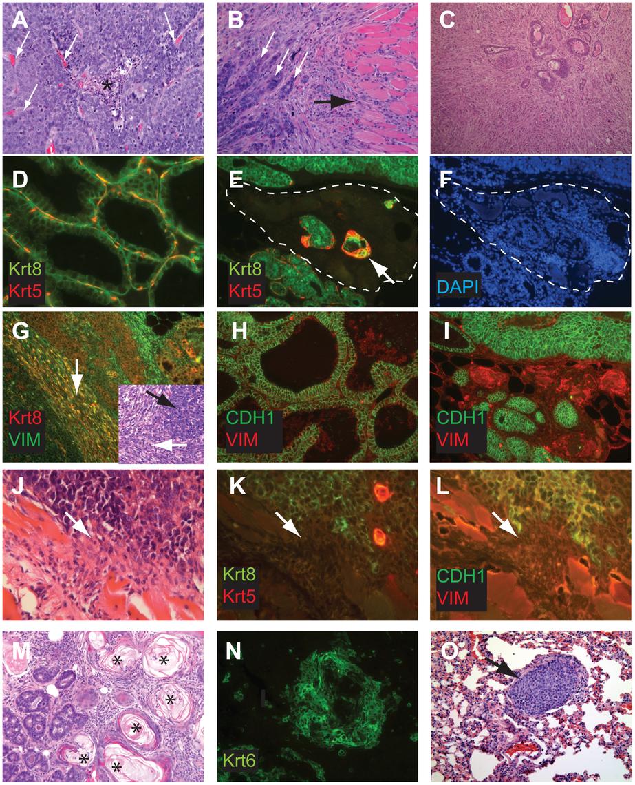 Perturbed differentiation in TBP tumors.