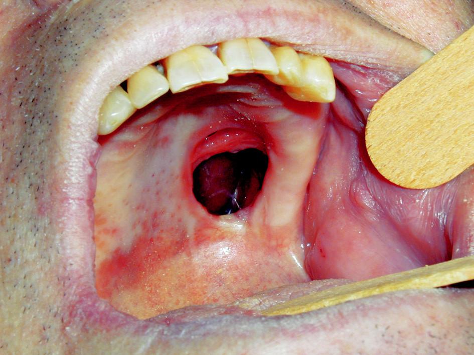 Oroantrální komunikace po radikální excizi tumoru patra.