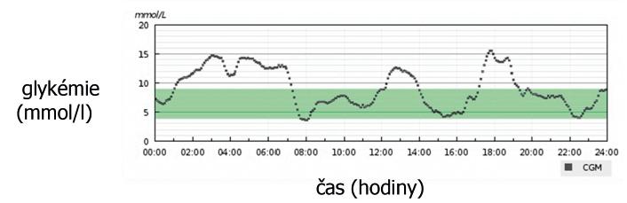 Denní záznam z kontinuálního monitoru glykémie.