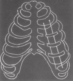 Fixace K-dráty (Beltrami 1978)