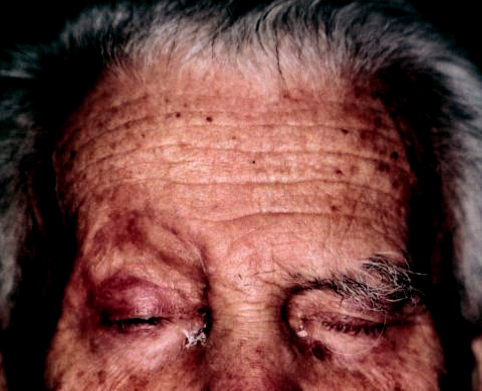 Jazva pri pravom obočí v januári 2007 po exstirpácii uzlíka, histologicky verifikovaného ako blastický NK-bunkový lymfóm.