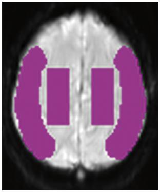 ROI (Region Of Interest) použité k analýze u všech provedených skenů, zobrazena pouze jedna vrstva, ROI byly definovány v podobném tvaru ve čtyřech vrstvách.