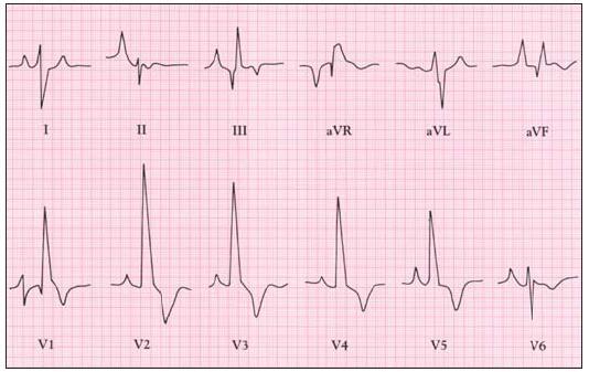 EKG u Ebsteinovy anomálie s vysokými vlnami P a BPR.