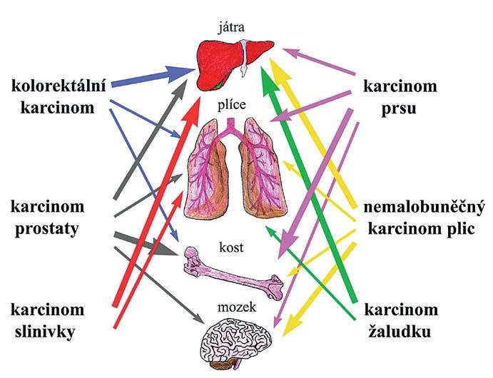 Tkáňový tropizmus. Různé typy karcinomů a cílové tkáně, do nichž nejčastěji metastazují. Frekvence metastáz je znázorněna sílou jednotlivých šipek.