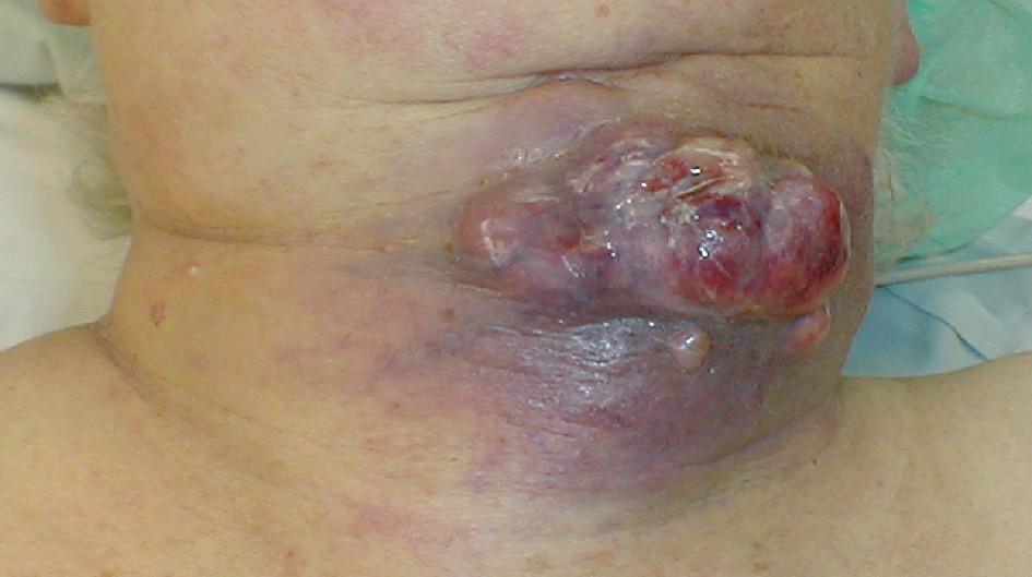 Lokálně pokročilý ATC – prorůstání přes infrahyoidní svaly do kůže Fig. 1: Locally advanced ATC – invasion through the infrahyoid muscles into the skin