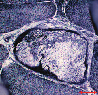 MD1. Sarkoplazmatické masy s intenzivní reakcí na mitochondriální dehydrogenázy na periferii vlákna. NADH tetrazolium reduktáza. Úsečka – 20 μm.