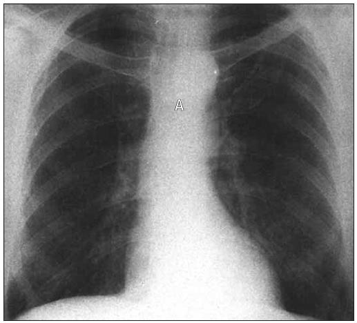 RTG hrudníku u supravalvulární stenózy. Srdce je tvarem normální a vzestupná aorta nerozeznatelná.