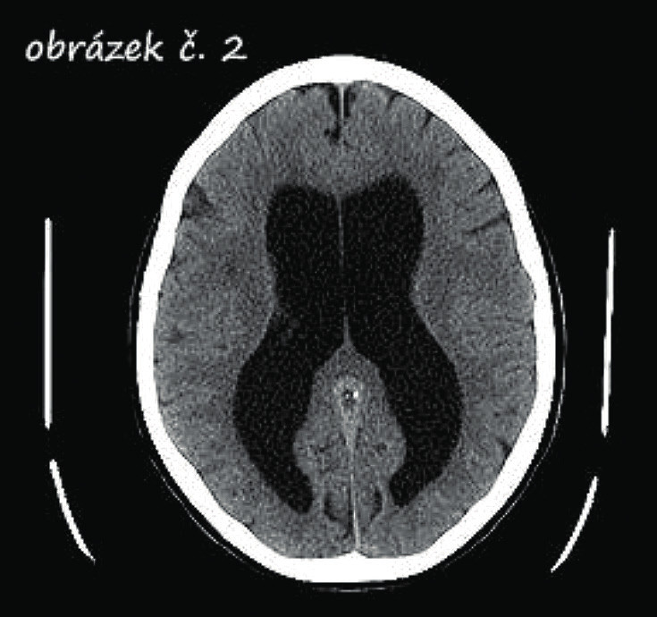 CT snímek hydrocefalu