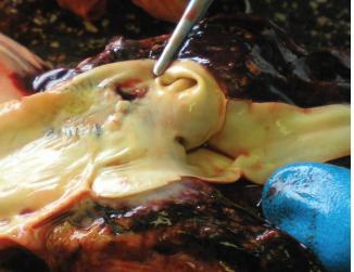 Koarktace aorty – foto z pitvy.