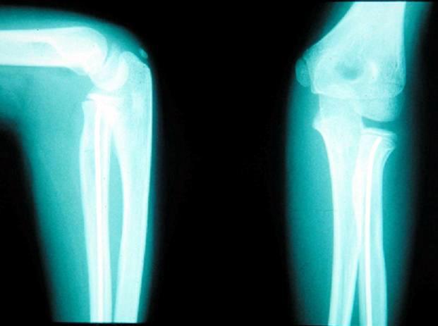 RTG lakťového kĺbu v dvoch projekciách po operácii