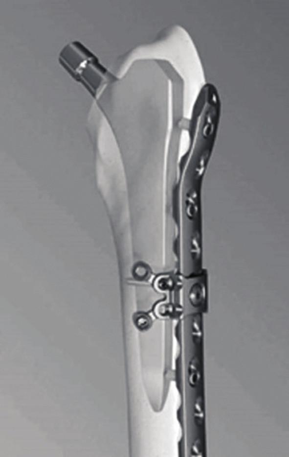 U firem nabízejících instrumentária pro řešení periprotetických zlomenin jsou v portfoliu modelované dlahy různé délky pro nejčastější lokalizace