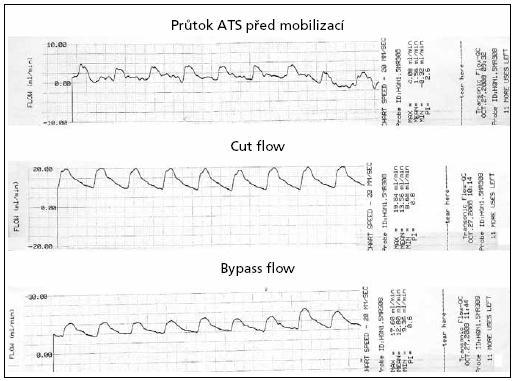 Peroperační hodnoty průtoku cévou v ml/min – výstup ultrazvukového flowmetru TTFM. Význam Cut Flow a Bypass Flow je popsán v metodice ultrazvukového vyšetření.
