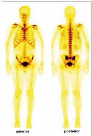 Celotělový scintigram skeletu (srpen roku 2009) ukázal abnormálně zvýšenou aktivitu radiofarmaka v celém hrudním koši (včetně chrupavčitých částí žeber, sterna a klavikul). Nehomogenně vyšší aktivita byla dále popsána v proximálních polovinách obou humerů, v distální třetině levého femuru a v proximální polovině obou tibií. Vysoká aktivita radiofarmaka je rovněž patrná v kosti křížové a v oblasti obou sakroiliakálních skloubení.
