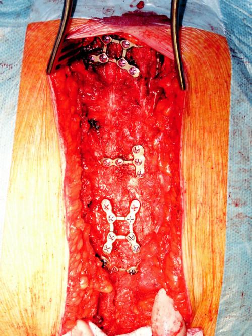 Výsledný stav po implantaci kostěných dlah SternaLock ® systému Fig. 6. Outcome of the SternaLock® bone casts implantation