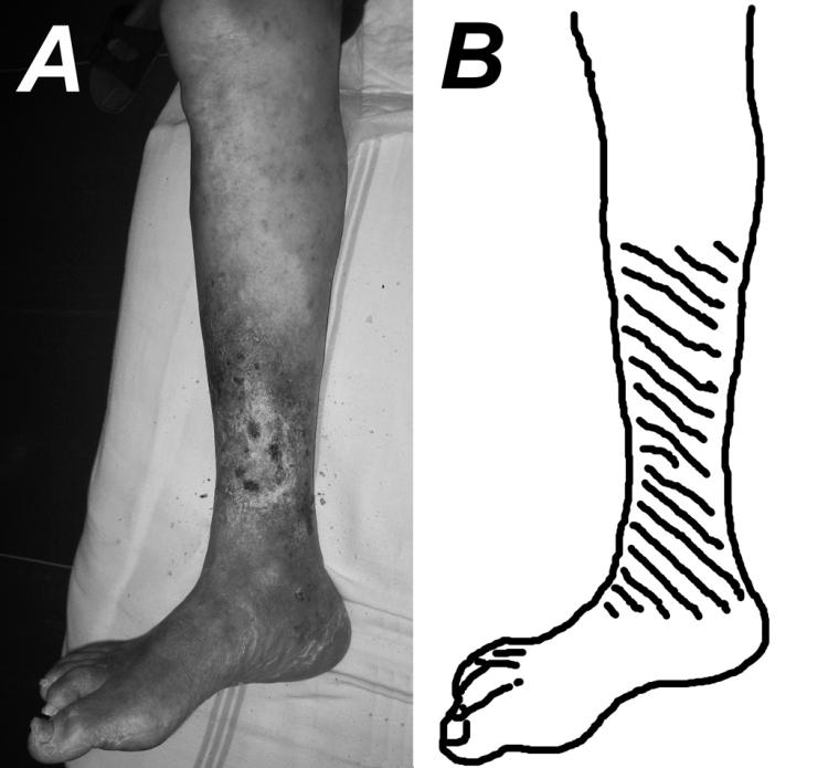 A – typická lokalizácia a tvar VU (fotografia pravej dolnej končatiny 79-ročného muža s 12-ročnou anamnézou VU DK pre posttrombotický syndróm), B – šráfovanie vyznačuje typickú lokalizáciu VU