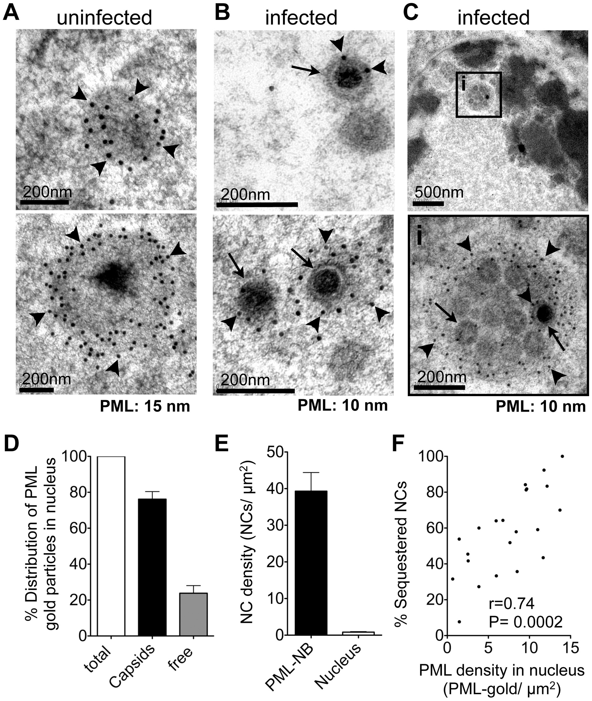 PML cages sequester mature and immature VZV nucleocapsids.