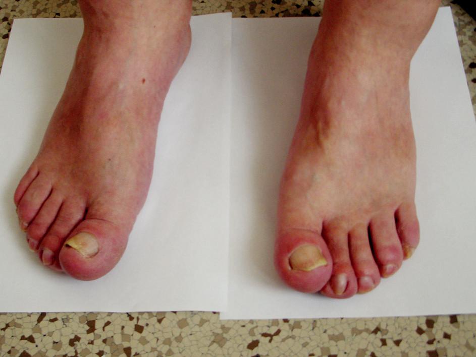 Paličkovité prsty na nohou.