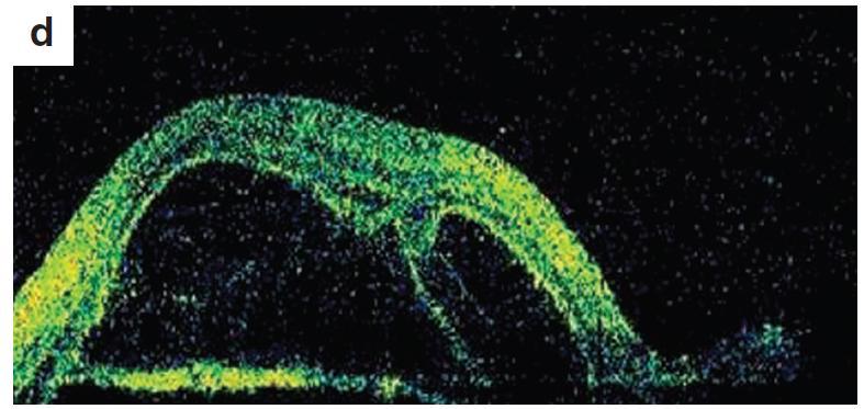 OCT retinálny nález – uveitické štádium VKH syndrómu a) o.dx horizontálny sken, b) o.dx vertikálny sken c) o.sin horizontálny sken, d) o.sin vertikálny sken