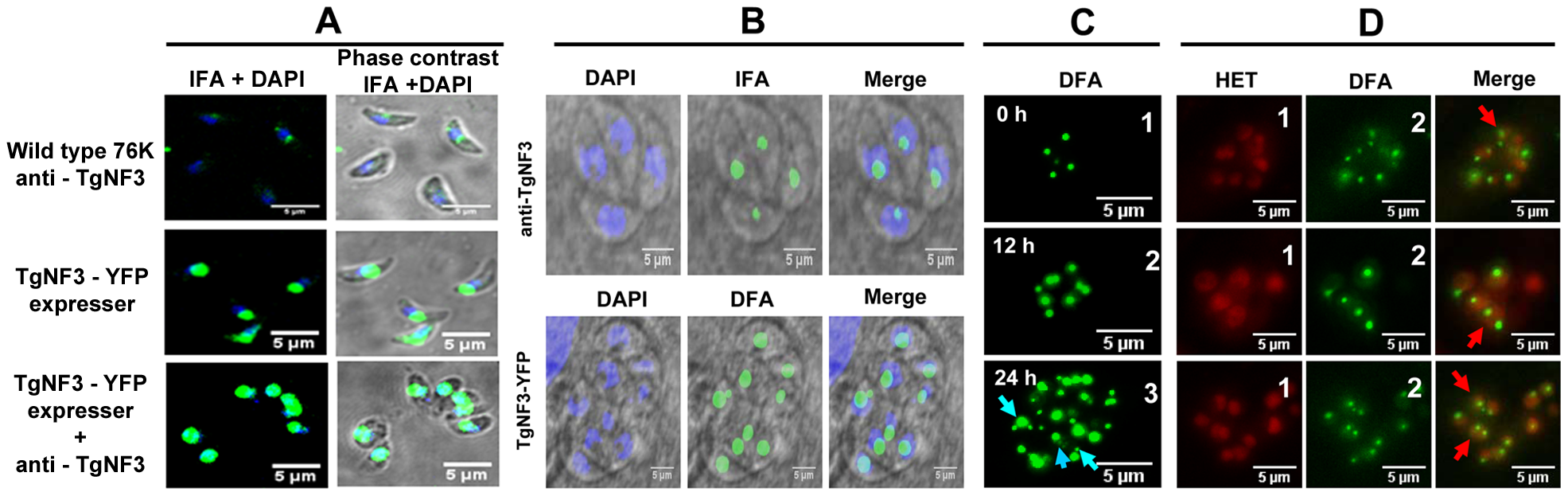 Native TgNF3 and transgenic TgNF3-YFP proteins are preponderant nucleolar resident factors.