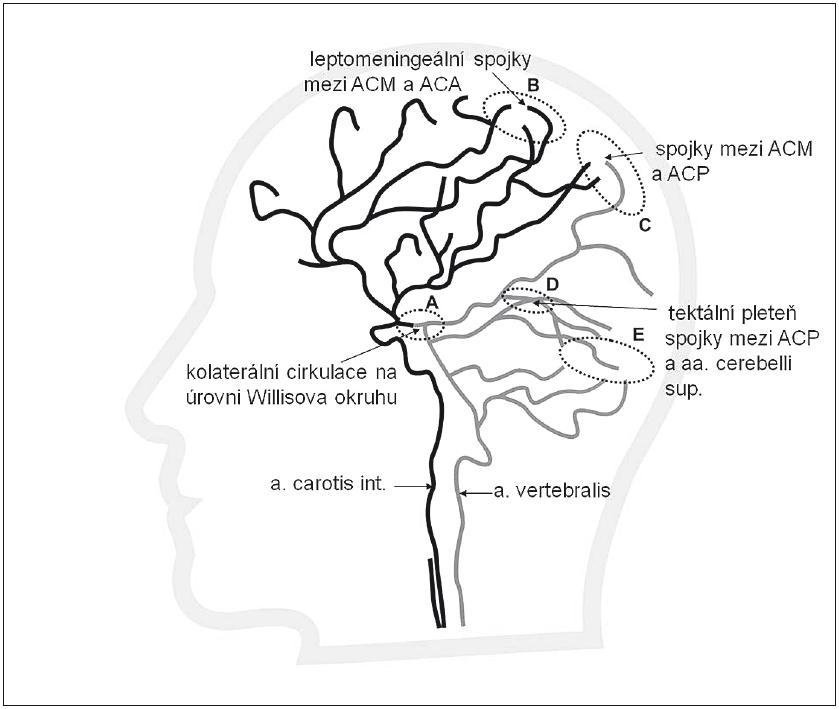 """Intrakraniální systém kolaterální cirkulace (bočná projekce) znázorňující spojky mezi tepnami mozku (ACA, ACM, ACP) a tepnami mozečku. A – a. communicans posterior (kolaterální cirkulace na úrovni Willisova okruhu), B – leptomeningeální anastomózy mezi ACA a ACM, C – leptomeningeální anastomózy mezi ACM a ACP, D – """"tektální plexus"""" anastomózy na úrovni tentoria mezi aa. cerebelli superiores (SCA) a ACP, E – anastomózy v povodí mozečkových tepen uplatňující se především u mozečkových infarktů."""