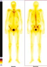 Zvýšená aktivita je vidět asi ve 3. a 6. žebru vpravo ventrálně, asi v 6. a 7. žebru ventrálně vlevo, v pravém SI skloubení, v pravé lopatě kosti kyčelní, levý sternoklavikulární kloub, v oblasti pravého metatarzu.