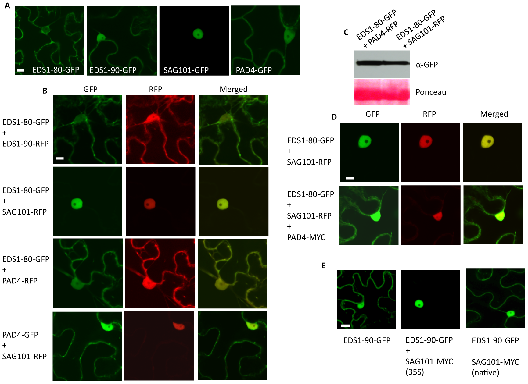 EDS1 preferentially localizes to the nucleus in the presence of SAG101.