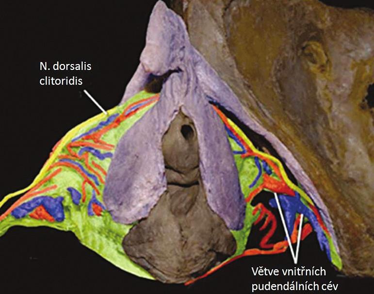 Pitevní preparát erektilních tkání ženského genitálu, nervy klitorisu jsou znázorněny žlutě, terminální pudendální cévy modře a červeně (zdroj: O'Connell, HE., Eizenberg, N., Rahman, M., et al. The anatomy of the distal vagina: towards unity. J Sex Med, 2008, 5, p. 1883–1891)