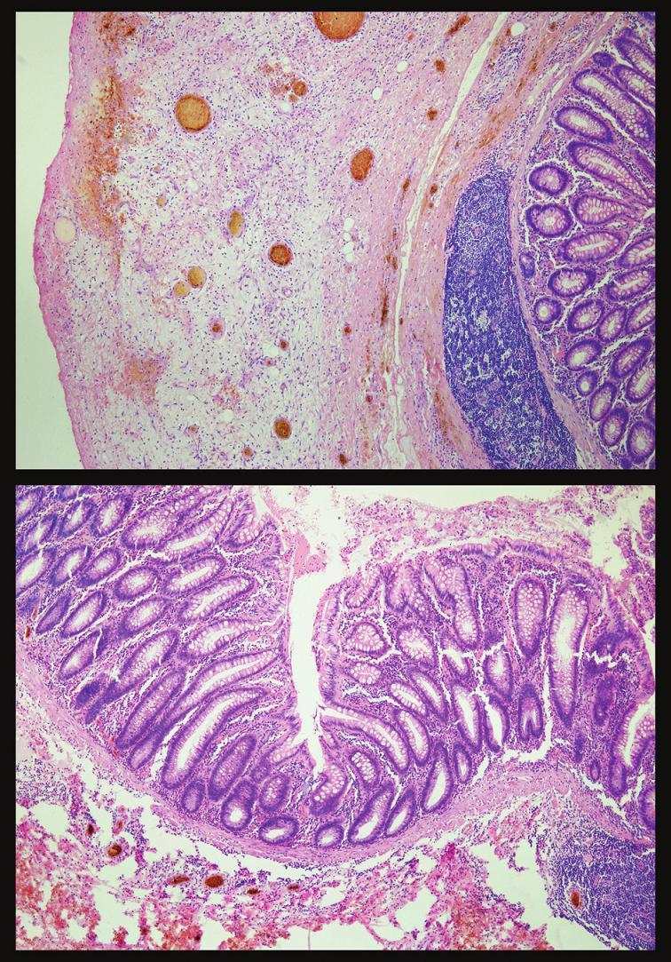 Histologický obraz zapáleného pseudodivertikla Fig. 3. Histological view of the inflamed pseudodiverticle