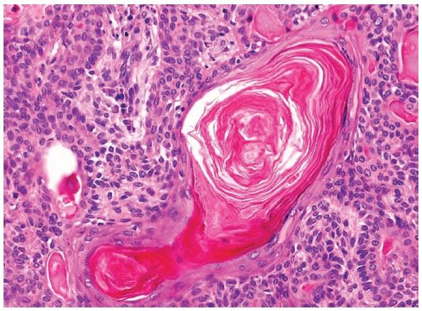 Skvamózní metaplázie s jasnou keratinizací. HE, 400x.